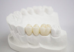 Teeth Fixed Restorations PA